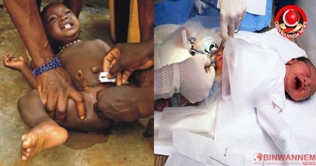 The Value of Male Circumcision (Ibi Ugwu) in Igbo culture
